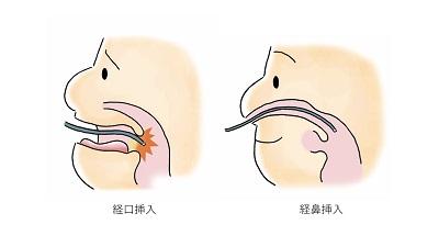 経鼻挿入イメージ